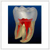 Endodontic treatment concerning