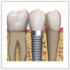 Periodontal treatment related to implant-site preparation