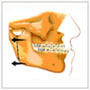 >Oral and maxilla-facial surgery related to placement of implant